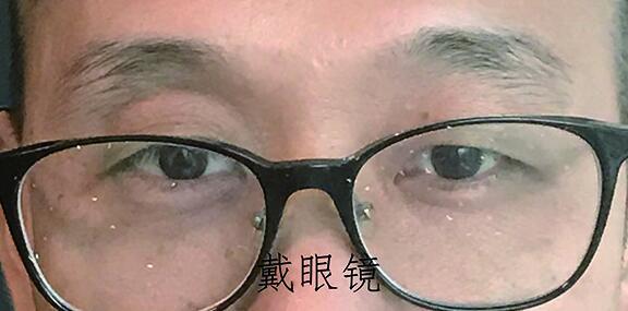 深圳龙华计先生佩戴前后对比